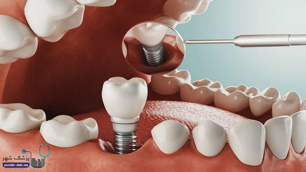 متخصص ایمپلنت دندان در شیراز