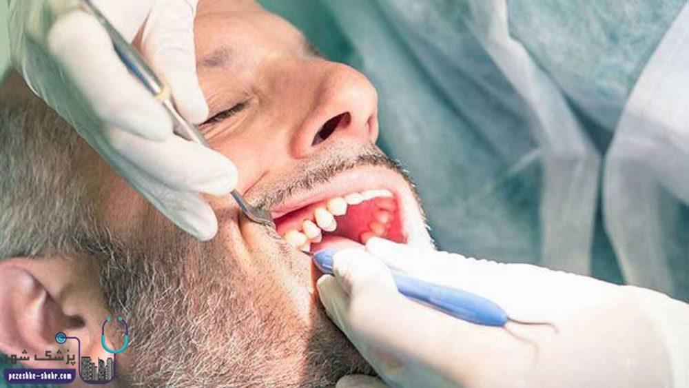 دندانپزشک متخصص جراحی لثه در شیراز