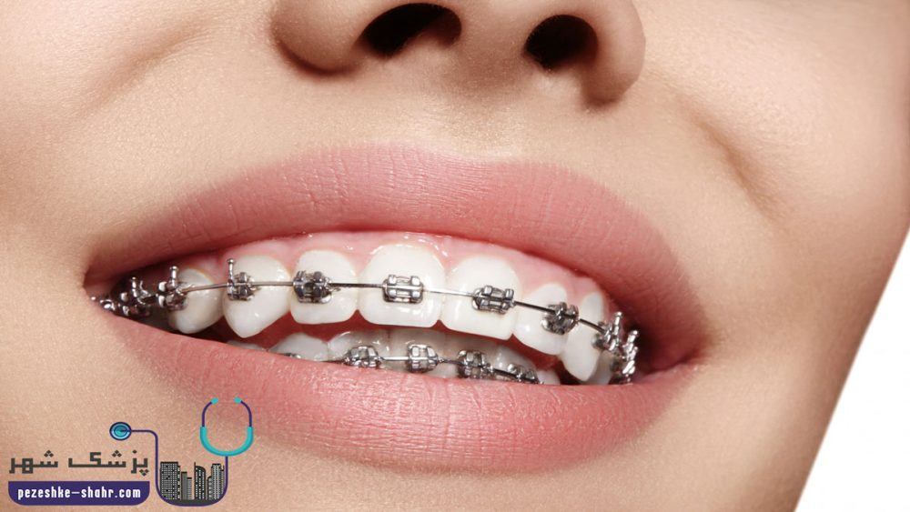 دندانپزشک متخصص ارتودنسی دندان در شیراز